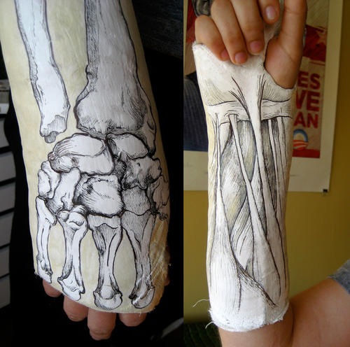 Anatomical drawing on a cast boing boing for Arm cast decoration ideas