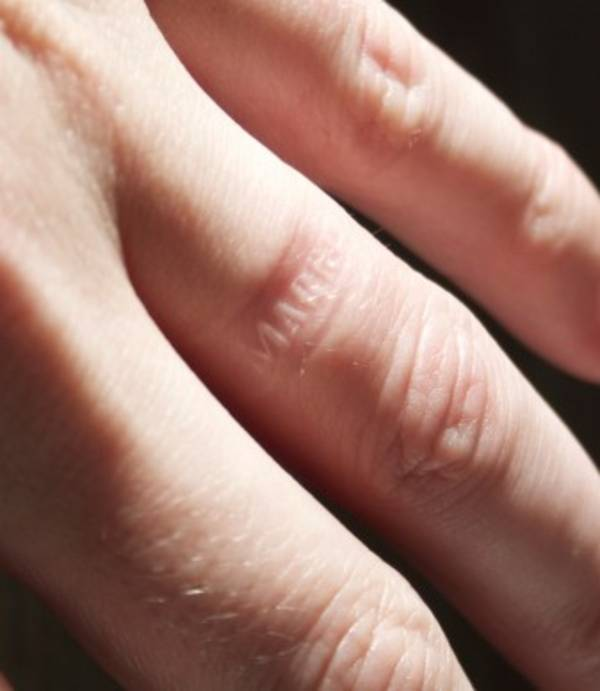 Ring On Left Ring Finger: Anti-cheating Ring Brands I'M MARRIED Into The Flesh Of