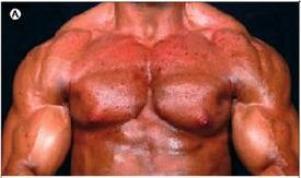 Steroid Abuser S Horrific Chest Acne Boing Boing